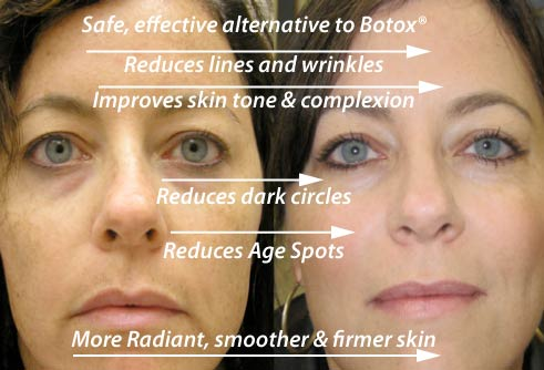 before and after pictures of anti-wrinkle effect of Reverta Anti-Aging Cream