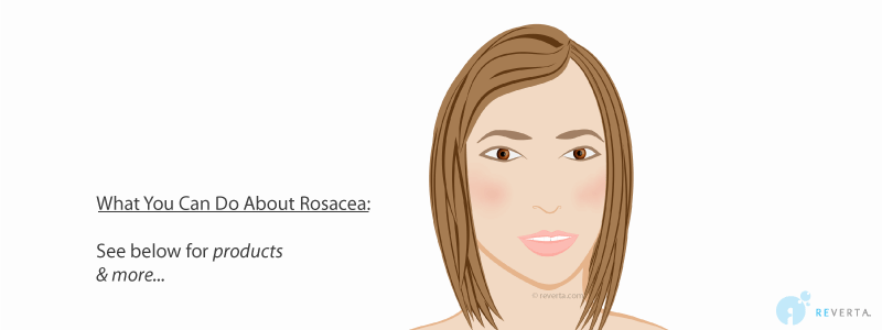 rosacea stage 1