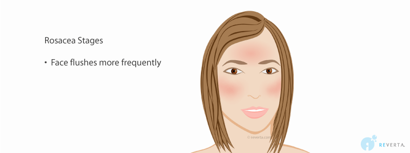 rosacea stage 2