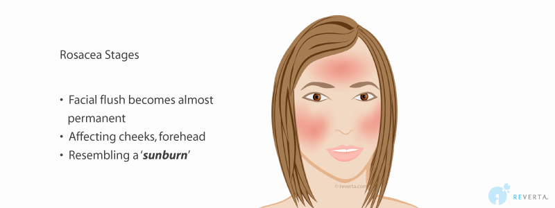 rosacea stage 3