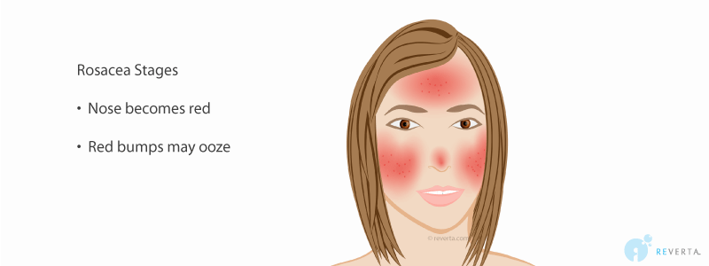 rosacea stage 5