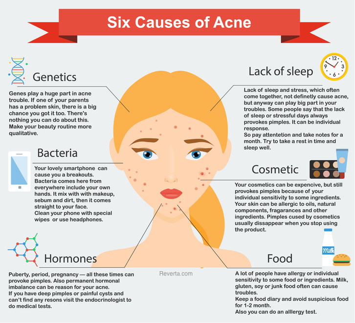 Causes of Acne - Infographic